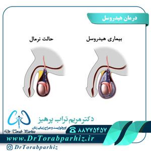 درمان هیدروسل