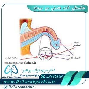 شکستگی آلت تناسلی در مردان